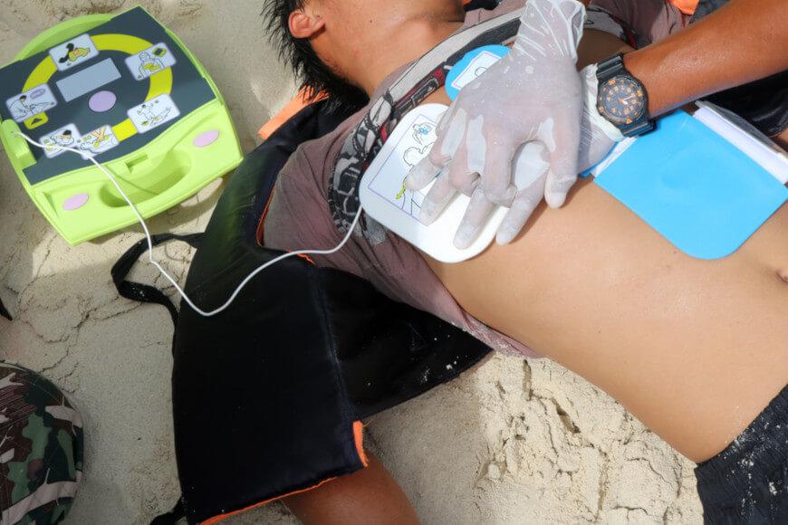 Uma das primeiras ações em casos de parada cardiorrespiratória é a reanimação ou ressuscitação cardiopulmonar com compressões torácicas eficientes.