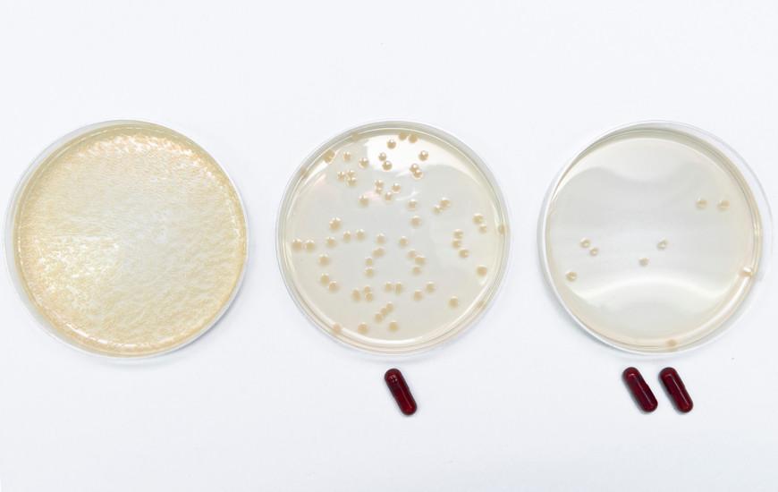 As superbactérias caracterizam-se por apresentarem resistência a diversos antibióticos.