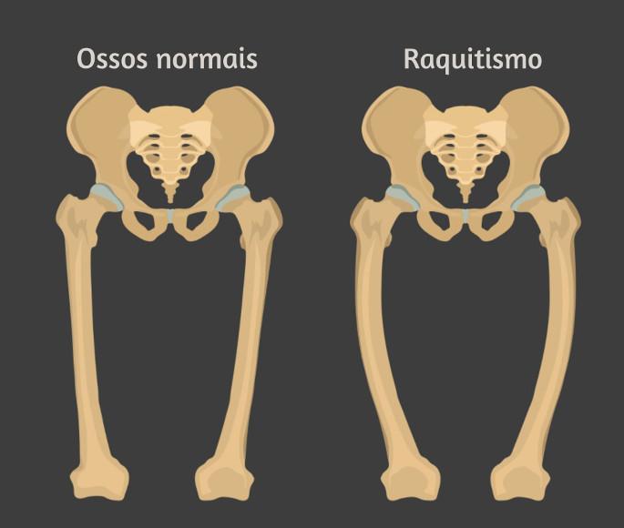 O raquitismo é caracterizado por retardo do crescimento e deformidades ósseas, como o encurvamento de ossos longos.