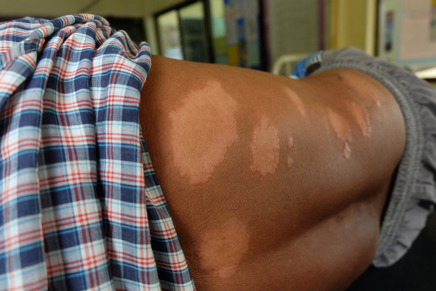 Manchas esbranquiçadas, avermelhadas ou acastanhadas na pele é um dos sintomas da hanseníase.