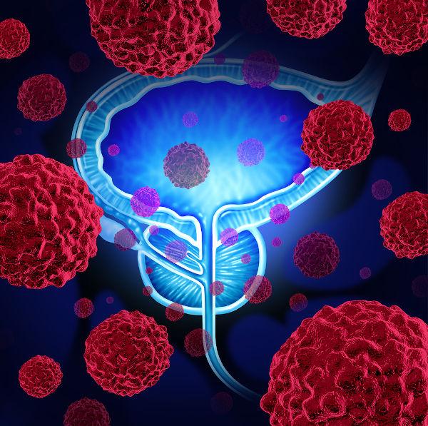 O câncer de próstata afeta a próstata, uma glândula localizada abaixo da bexiga, na frente do reto, e que envolve a uretra.