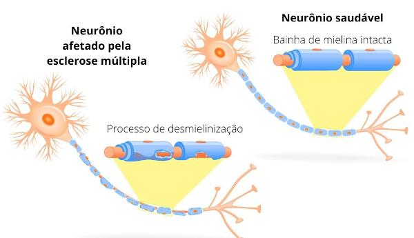 A esclerose múltipla afeta o sistema nervoso central e caracteriza-se pela desmielinização e degeneração do axônio.