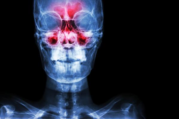 A rinossinusite é caracterizada pela inflamação das mucosas nasais e dos seios paranasais.