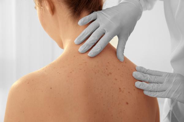 A exposição aos raios ultravioletas sem a devida proteção pode desencadear o câncer de pele.