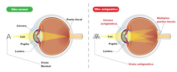 No astigmatismo, o sistema óptico tem dificuldades em formar um ponto focal na retina.