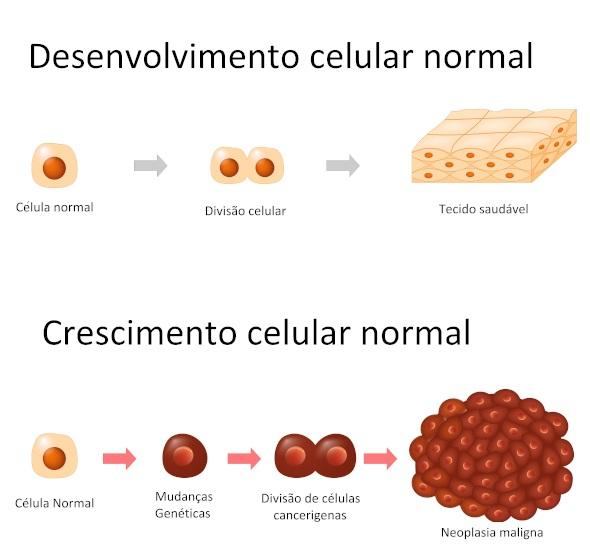 Nas neoplasias, as células sofrem alterações e a sua proliferação passa a ser desordenada.