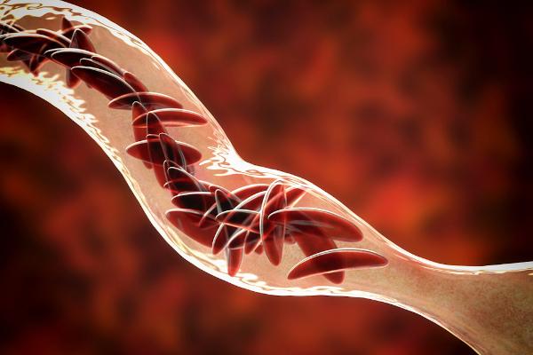 Os portadores da anemia falciforme apresentam hemácias em forma de foice, o que dificulta a sua passagem através dos vasos sanguíneos.