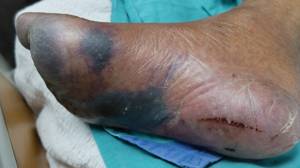 Um dos sintomas da gangrena é a mudança na coloração da pele, a qual pode variar de pálida a preta.