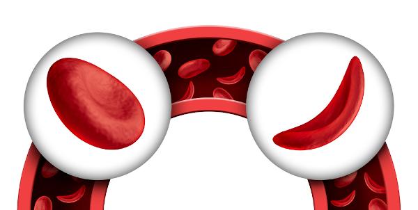 A hemácia em indivíduos portadores de anemia falciforme apresenta-se em forma de foice.