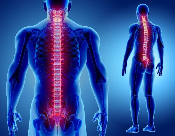 A mielite transversa é um processo infamatório que ocorre na medula espinhal, localizada dentro da coluna vertebral.