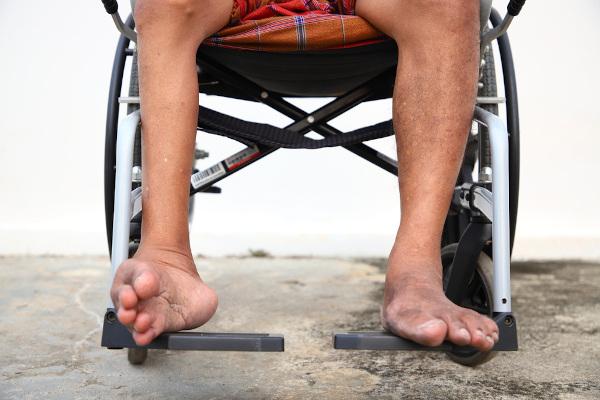A poliomielite pode causar a paralisia definitiva, principalmente dos membros inferiores.