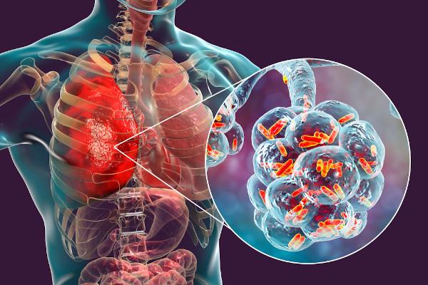 A pneumonia é uma inflamação nos pulmões que pode ser causada por diferentes agentes, como vírus, bactérias e fungos.