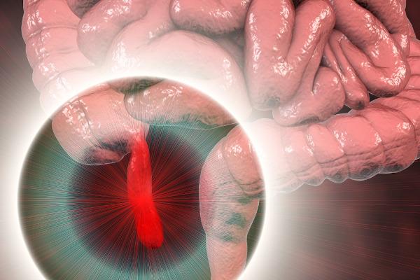 A apendicite é uma inflamação no apêndice, uma extensão do intestino grosso.