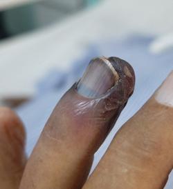 Dedo gangrenado