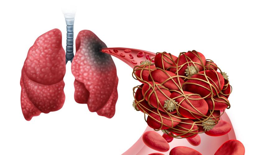 A embolia gasosa e a embolia pulmonar são situações distintas. Na embolia pulmonar, observamos a presença de trombos.