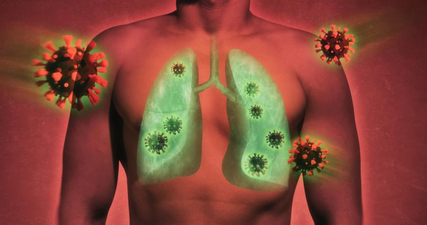 Vírus e bactérias podem desencadear problemas pulmonares.