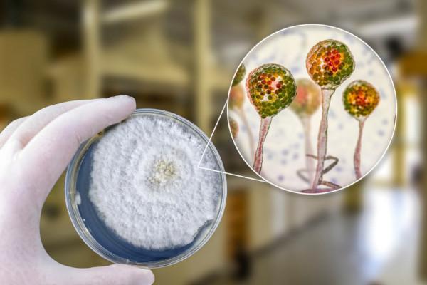 A mucormicose é desencadeada por fungos da ordem Mucorales.