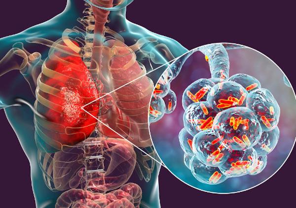 Pulmão com bactérias