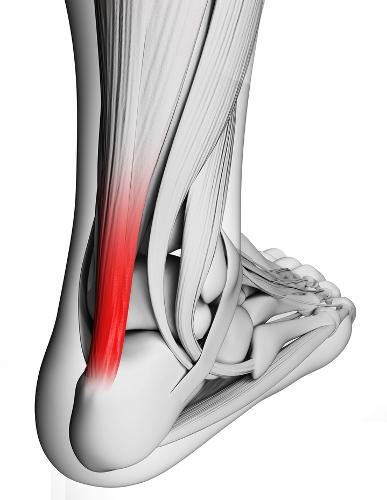 Os tendões são estruturas que ligam as extremidades dos músculos estriados aos ossos
