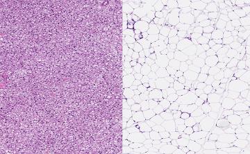 Tecido adiposo multilocular (esquerda) com células com várias gotas de gordura e tecido unilocular (direita) com células com única gota de gordura