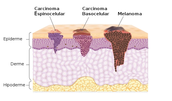 Veja, no esquema, a ilustração dos diferentes tipos de câncer.
