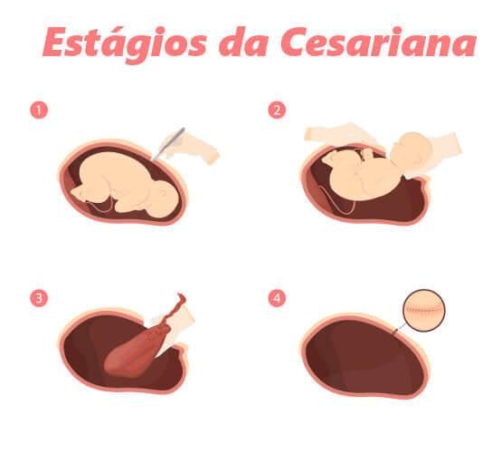 Na cesariana, é necessário realizar a incisão da parede abdominal.