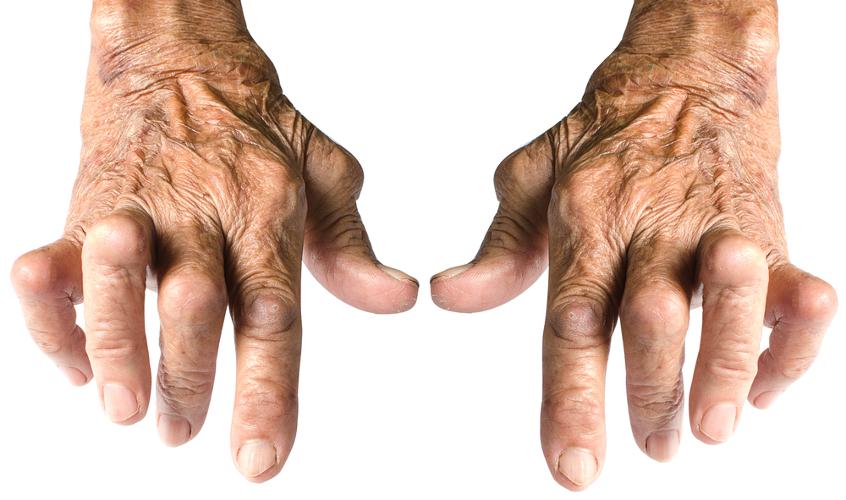 A artrite reumatoide é uma doença autoimune que afeta uma a cada 100 pessoas no mundo