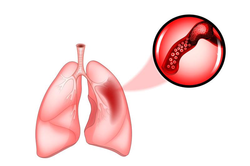 A embolia pulmonar acontece quando ocorre a obstrução da artéria pulmonar ou de um de seus ramos.