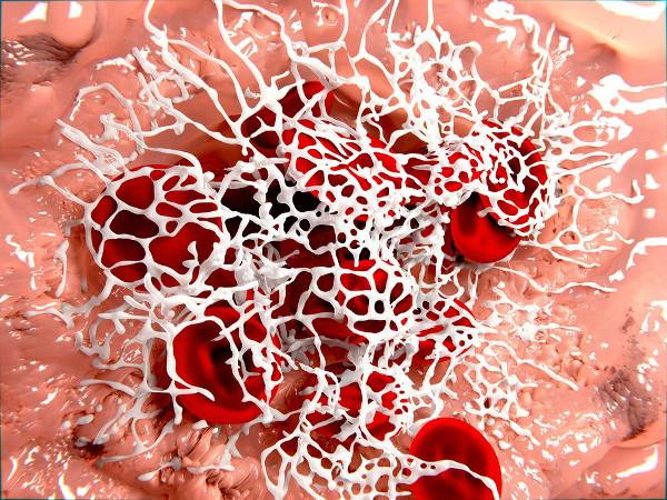 A hemofilia é caracterizada pela dificuldade no processo de coagulação do sangue