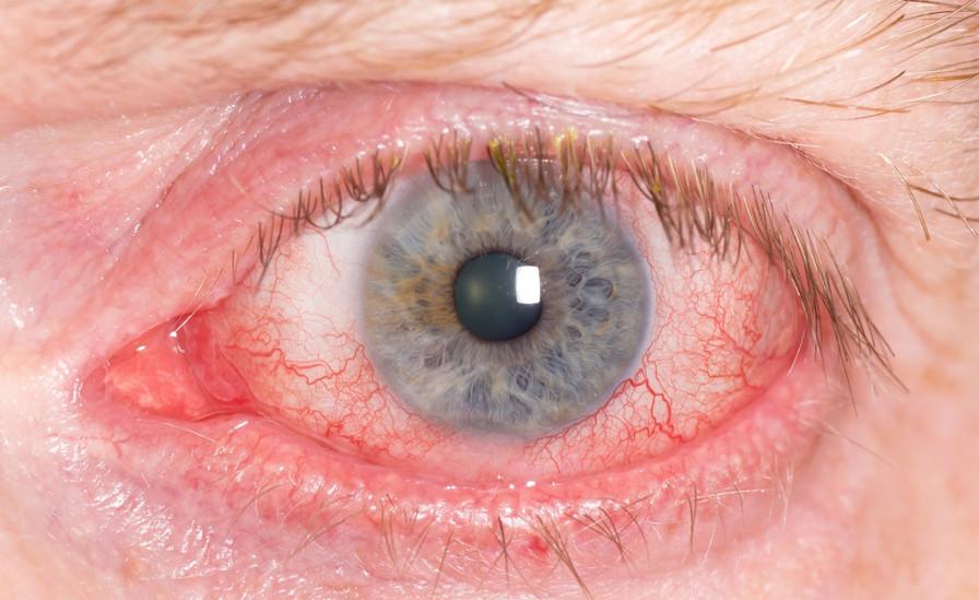 Alguns dos sintomas da conjuntivite são olhos vermelhos e irritados
