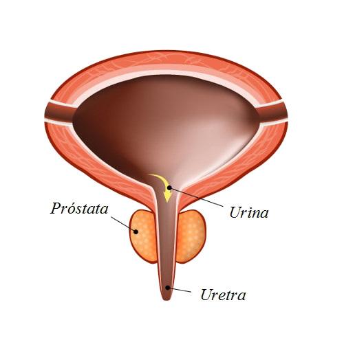 Alterações na próstata afetam o fluxo de urina