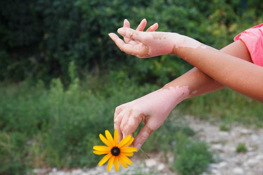 As manchas do vitiligo geralmente se apresentam em regiões bem visíveis, como o dorso das mãos