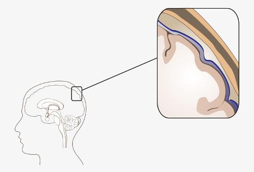 As meninges são constituídas por três camadas: dura-máter, aracnoide e pia-máter