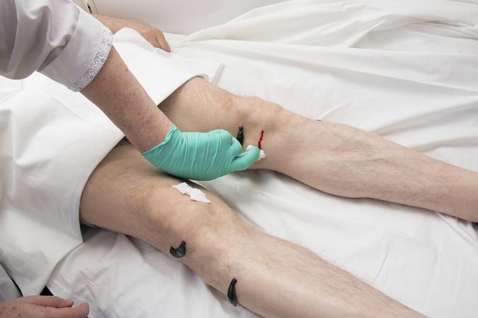 Durante anos, as sanguessugas foram utilizadas pela Medicina na prática da sangria para tratar doentes