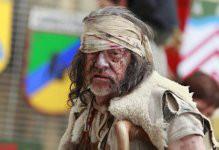 Foto de um homem com hanseníase. Observe as lesões na pele ocasionadas pela doença*