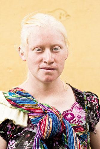 O albinismo é causado pela produção deficiente ou ausência total de melanina *