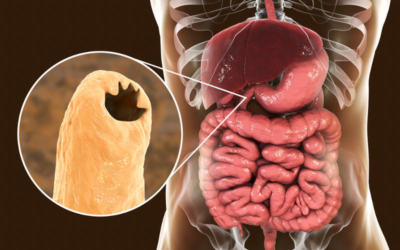 O Ancylosmoma duodenale fixa-se ao intestino e de lá retira seu alimento por meio de sucção