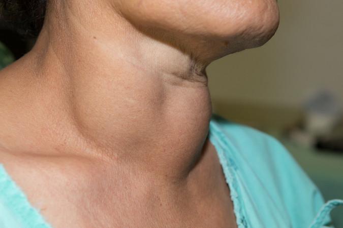 O bócio caracteriza-se pelo aumento da tireoide, o que provoca um inchaço na região do pescoço