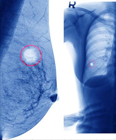 O câncer de mama ocorre em razão da multiplicação anormal de células nessa região
