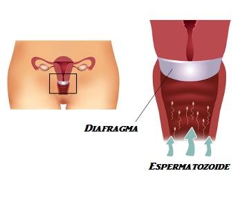 O diafragma é um método contraceptivo que deve ser colocado na região do colo do útero