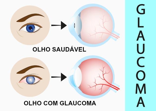 O glaucoma é causado pelo acúmulo do humor aquoso, o que causa o aumento da pressão intraocular