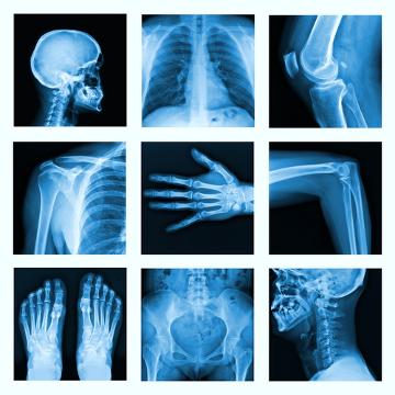 O sistema esquelético possui diversas funções, entre elas, a sustentação e proteção de órgãos