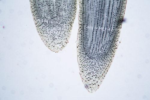 Observe esse corte da raiz mostrando o meristema apical