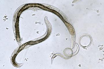 Os nematoides apresentam corpo alongado e afilado nas extremidades