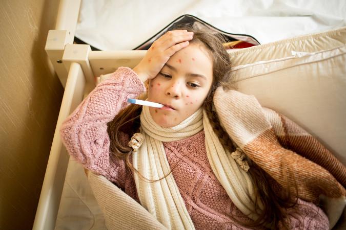 Um dos principais sintomas da catapora são manchas vermelhas cheias de líquido e espalhadas pelo corpo